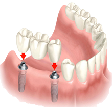 implant with crowns