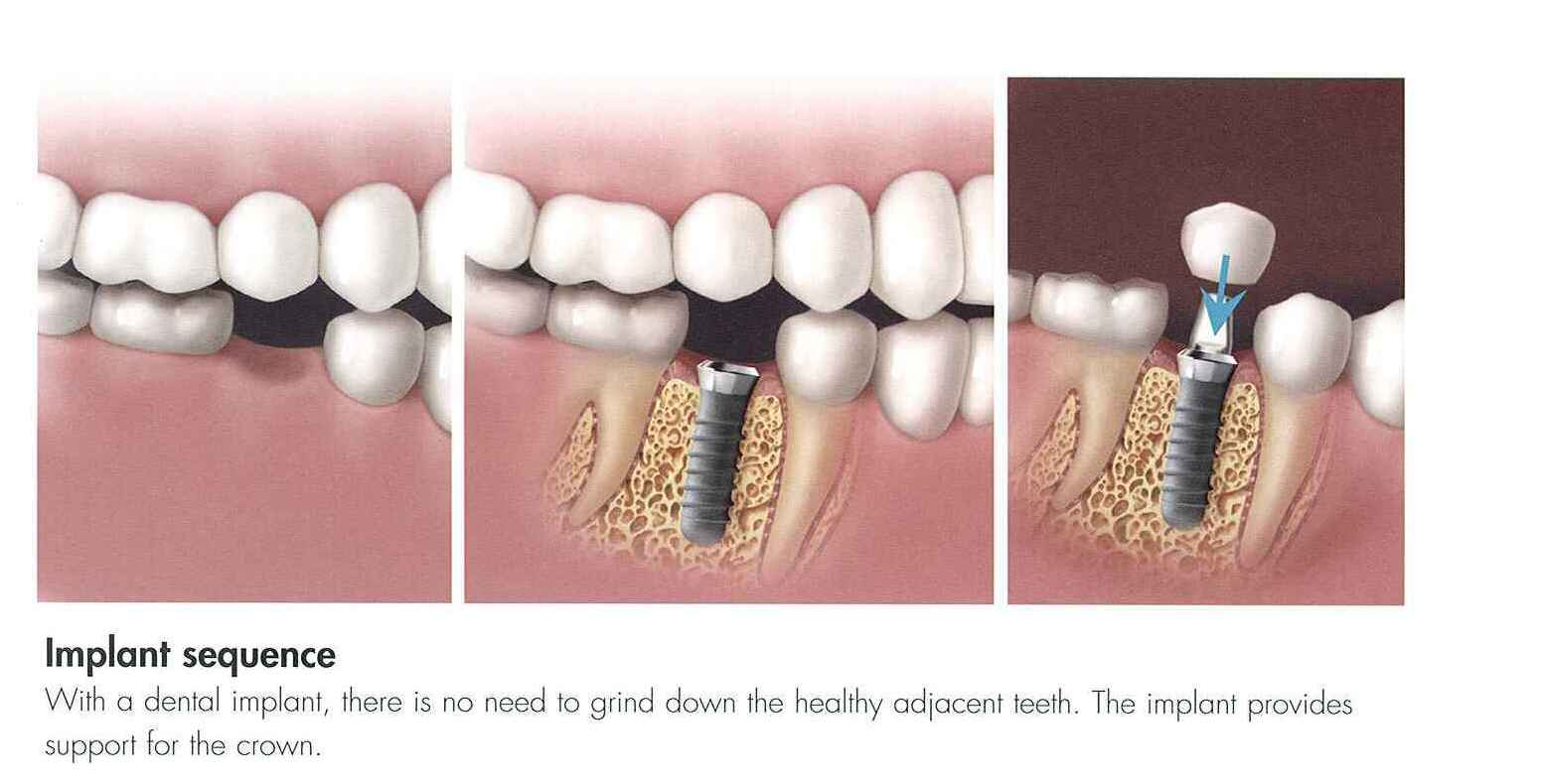 how to clean implant supported bridge