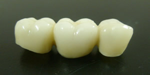 zirconia in Mexico