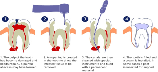 dental root canal in mexico